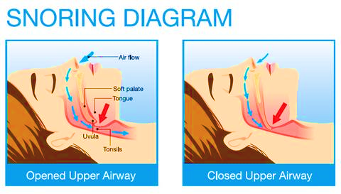 closed airways means snoring. reduce it with the proper pillow